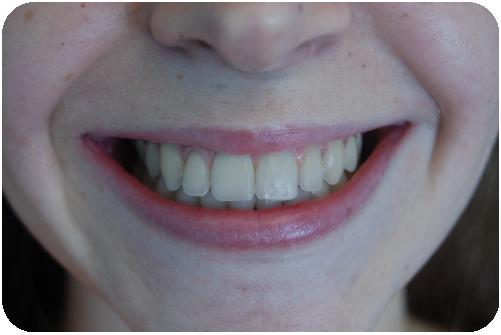Branqueamento Dentario Oralsaude