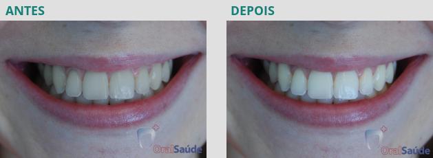 Branqueamento Dentário - antes e depois - caso 2
