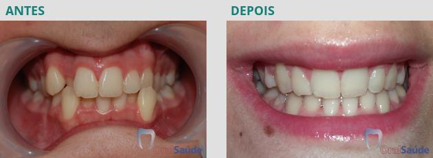 Ortodontia - antes e depois - caso 2