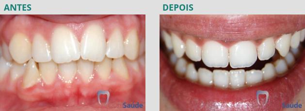 Ortodontia - antes e depois - caso 3