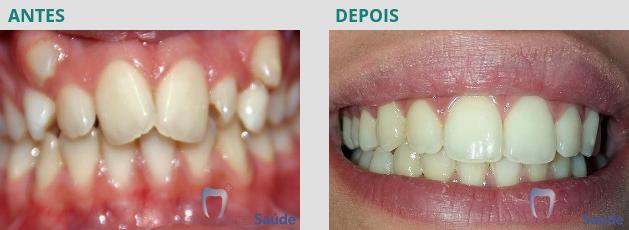 Ortodontia - antes e depois - caso 4